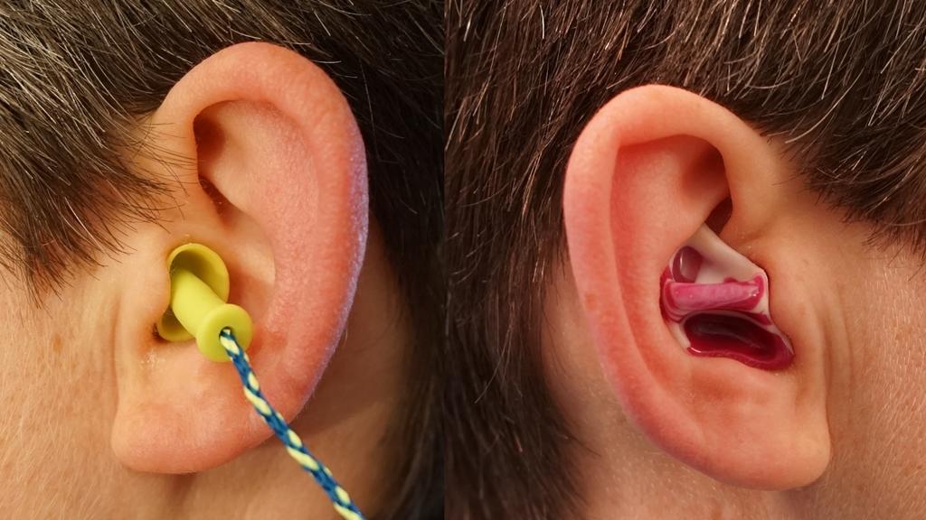 EinOhr mit Ohrstöpsel und ein Ohr mit Otoplastik